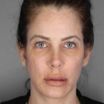 Facelift, Catherine Chang, Case 6 Before