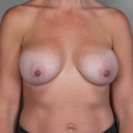 Breast Implant Revision, Dr. Cassileth, Case 25 Before