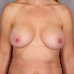 Breast Implant Revision, Dr. Cassileth, Case 25 After