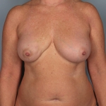 One-stage Breast Reconstruction, Dr. Cassileth, Case 34 Before