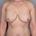 One-stage Breast Reconstruction, Dr. Cassileth, Case 34 After