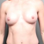 Breast Augmentation, Dr. Killeen, Case 5 After