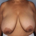 Breast Reduction, Dr. Killeen, Case 5 Before