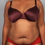 Liposuction, Dr. Min, Case 2 Before