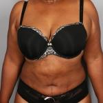 Liposuction, Dr. Min, Case 2 After