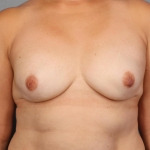 Breast Implant Revision, Dr. Cassileth, Case 28 Before