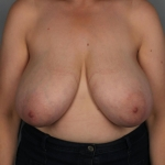 Breast Reduction, Dr. Killeen, Case 12 Before