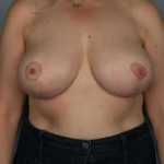 Breast Reduction, Dr. Killeen, Case 12 After