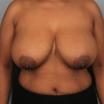 Breast Reduction, Dr. Min, Case 1 Before