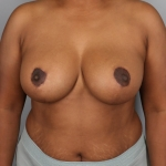 Breast Reduction, Dr. Min, Case 1 After