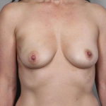 One-Stage Breast Reconstruction, Dr. Cassileth, Case 43 Before