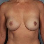 One-Stage Breast Reconstruction, Dr. Cassileth, Case 43 After