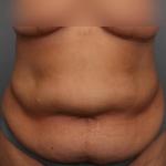 Tummy Tuck, Dr. Killeen, Case 8 Before