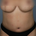Tummy Tuck, Dr. Killeen, Case 8 After