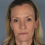 Restalyne, Medspa RN, Case 12 After