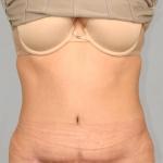 Tummy Tuck, Dr. Cassileth, Case 1 After