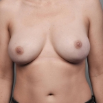 One-Stage Breast Reconstruction, Dr. Cassileth, Case 23 After
