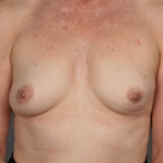 Breast Reconstruction with Fat Transfer, Dr. Cassileth, Case 15 Before