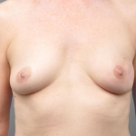 Breast Reconstruction with Fat Transfer, Dr. Cassileth, Case 15 After