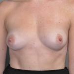 One-Stage Breast Reconstruction, Dr. Cassileth, Case 28 Before