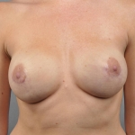 One-Stage Breast Reconstruction, Dr. Cassileth, Case 28 After