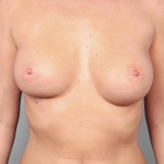 One-Stage Breast Reconstruction, Dr. Cassileth, Case 16 Before
