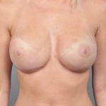 One-Stage Breast Reconstruction, Dr. Cassileth, Case 16 After