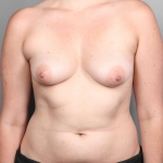 One-Stage Breast Reconstruction, Dr. Cassileth, Case 38 Before
