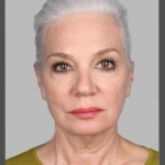 Facelift, Dr. Chang, Case 1 Before