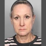 Facelift, Dr. Sunder, Case 5 Before