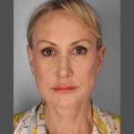 Facelift, Dr. Sunder, Case 5 After
