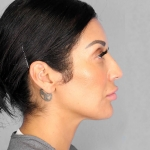 Rhinoplasty, Dr. Chang, Case 5 Before