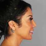 Rhinoplasty, Dr. Chang, Case 5 After