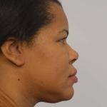 Rhinoplasty, Dr. Sunder, Case 2 Before