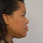 Rhinoplasty, Dr. Sunder, Case 2 After