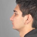 Rhinoplasty, Dr. Cassileth Case 1 After