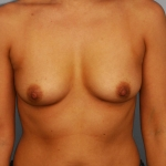 Breast Asymmetry, Dr. Cassileth, Case 10 Before