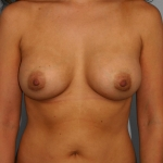 Breast Asymmetry, Dr. Cassileth, Case 10 After