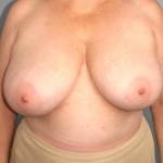 Breast Asymmetry, Dr. Cassileth, Case 4 Before
