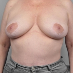 Breast Asymmetry, Dr. Cassileth, Case 4 After