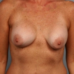 Breast Asymmetry, Dr. Cassileth, Case 5 Before