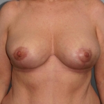 Breast Asymmetry, Dr. Cassileth, Case 6 After