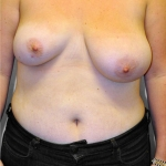 Breast Asymmetry, Dr. Cassileth, Case 3 Before