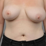 Breast Asymmetry, Dr. Cassileth, Case 3 After