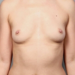 Breast Fat Transfer, Dr. Killeen, Case 13 Before