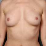 Breast Fat Transfer, Dr. Killeen, Case 13 After