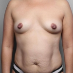 Breast Fat Transfer, Dr. Killeen, Case 22 Before