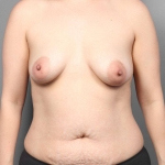 Breast Fat Transfer, Dr. Cassileth, Case 7 Before