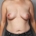 Breast Fat Transfer, Dr. Cassileth, Case 7 After