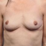 Breast Fat Transfer, Dr. Cassileth, Case 16 After